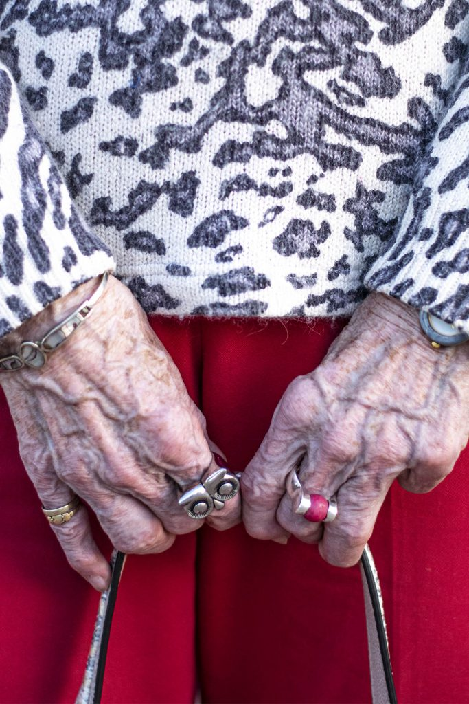 Rings on arthritic fingers